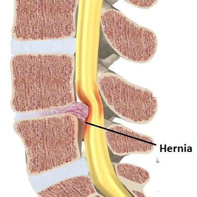 Definici n de hernia discal concepto en definici n abc for Silla oficina hernia discal
