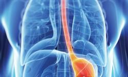 Definición de Cáncer de Estómago