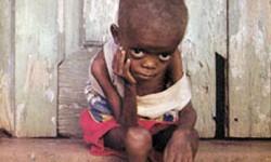 Definición de Desnutrición