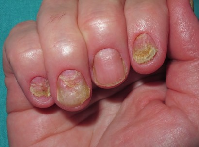 Psoriasis - lesiones ungueales
