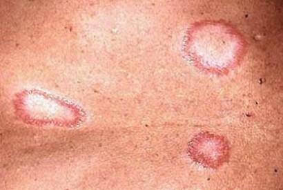 Lepra - lesiones píel