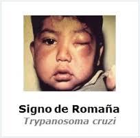 Chagas - Signo de Romaña