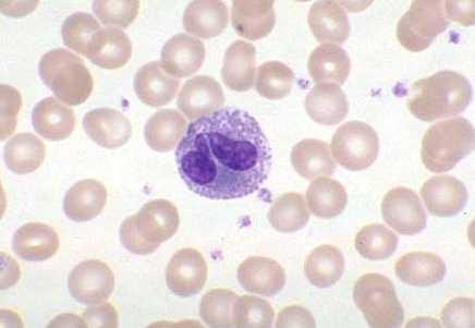 El análisis a la presencia de los parásitos spb