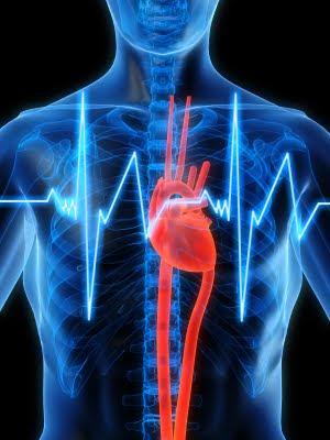 Taquicardia 1