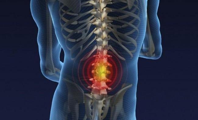 Remedios para el dolor muscular de espalda