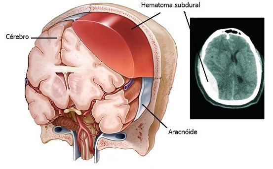 Hematoma subdural