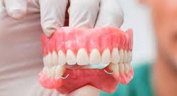 Definición de Prótesis Dentales