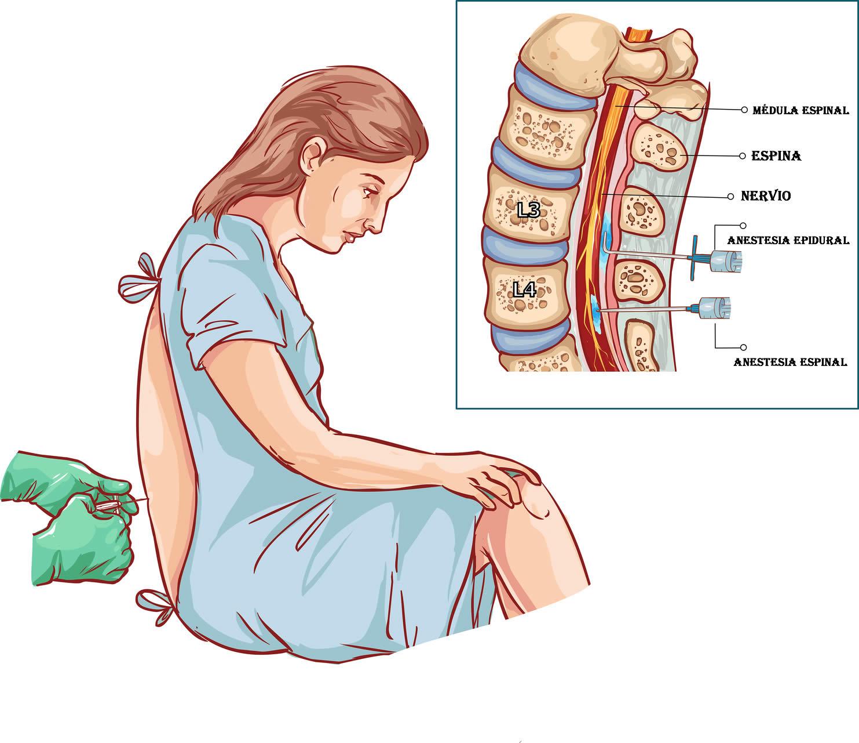 Definición de Anestesia Epidural y Raquídea