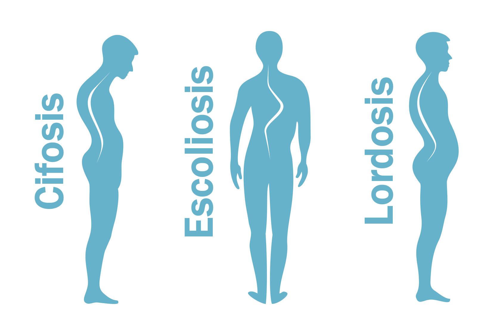 Definición de Lordosis, Escoliosis y Cifosis