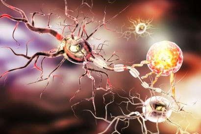 Neuropsicologia-deficiencias-celulas-nervios