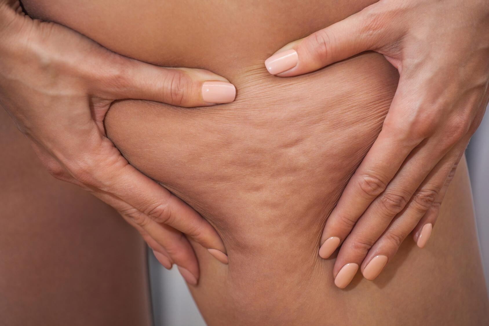 Resultado de imagen para Celulitis Edematosa