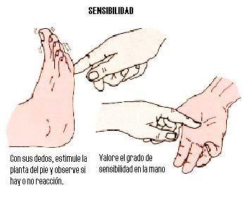 sensibilidad1